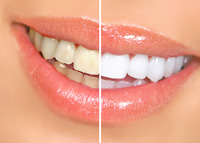 Teeth Whitening in Gainesville, VA