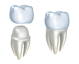 Dental Crowns in Gainesville, VA